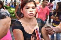 Xalapa, Ver., 3 de Septiembre de 2015.- Mar�a Emelia Gonz�lez, denuncia a doctora del Sindicato 06 de la comunidad de Ohuapan, perteneciente al municipio de Tlaltetela por presunta negligencia m�dica.