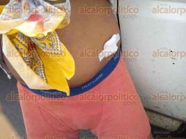 Medell�n de Bravo, Ver., 21 de octubre de 2016.- Manifestantes se enfrentaron con trabajadores del Ayuntamiento, dejando lesionados y destrozos en el Palacio Municipal. Algunos de los participantes en la trifulca mostraron a los medios sus heridas.
